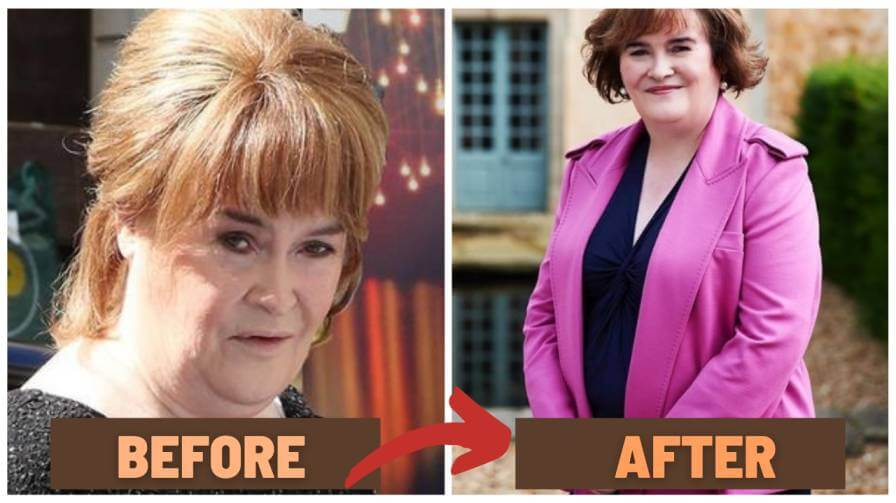 susan boyle before after